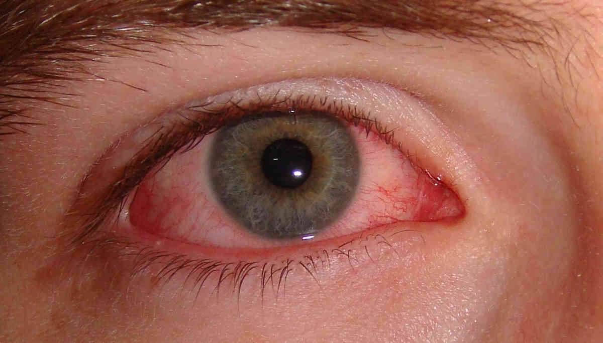 Madras Eye Infection is back again